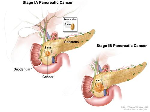 pancreatic cancer final stages oxiuros nematodos