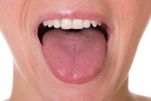 papilloma squamoso della cute infectie cu helminti
