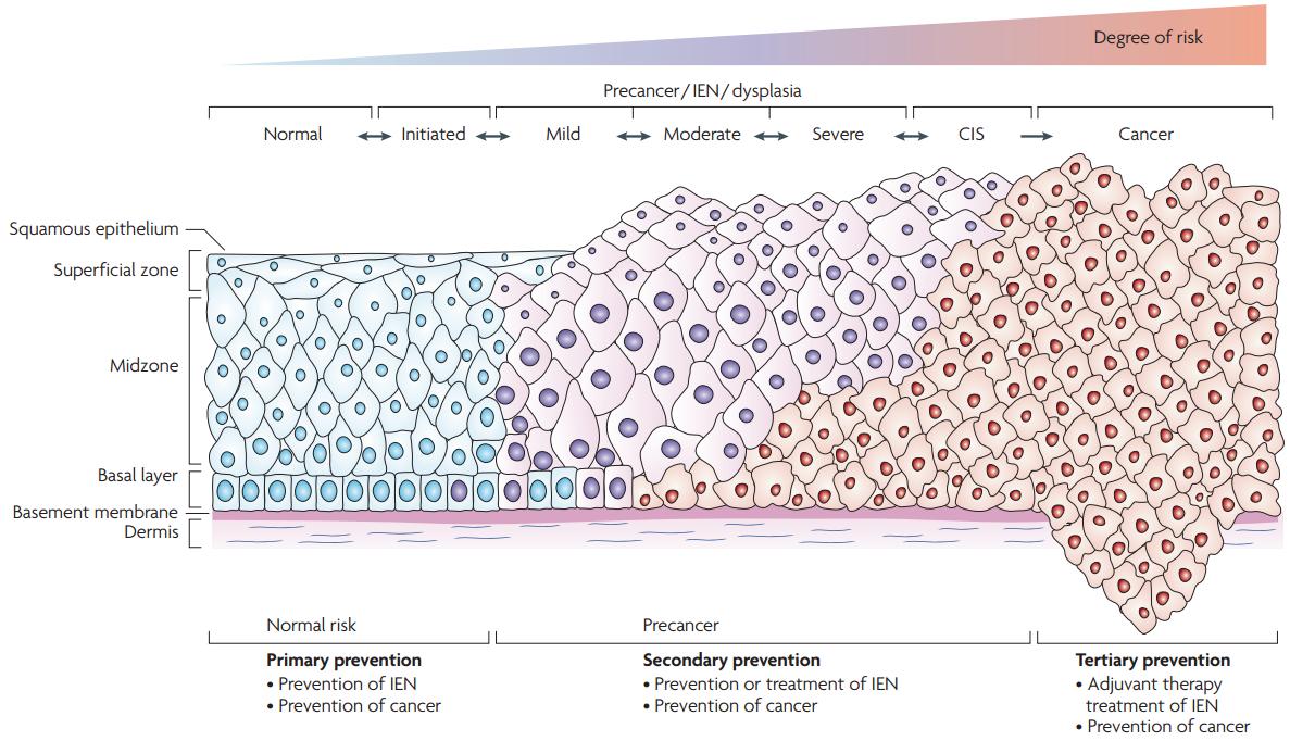 hpv cervical cancer pathology