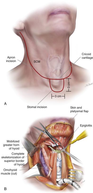 papillary thyroid cancer bone mets