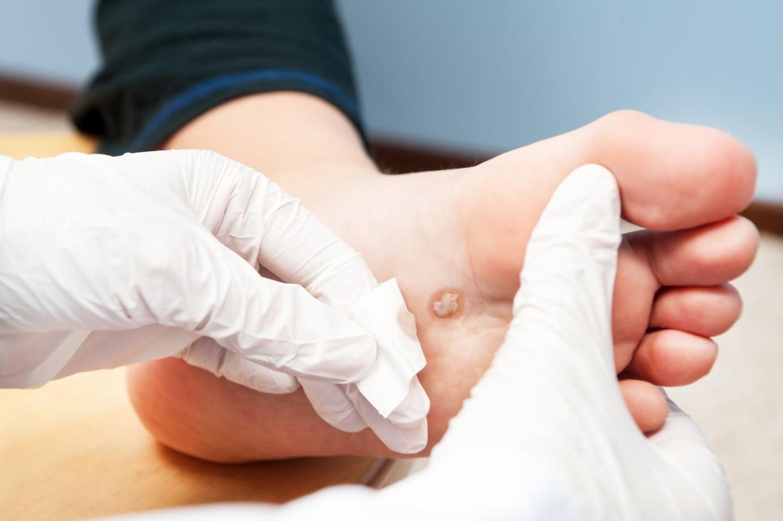 foot wart traduccion testicular cancer journal