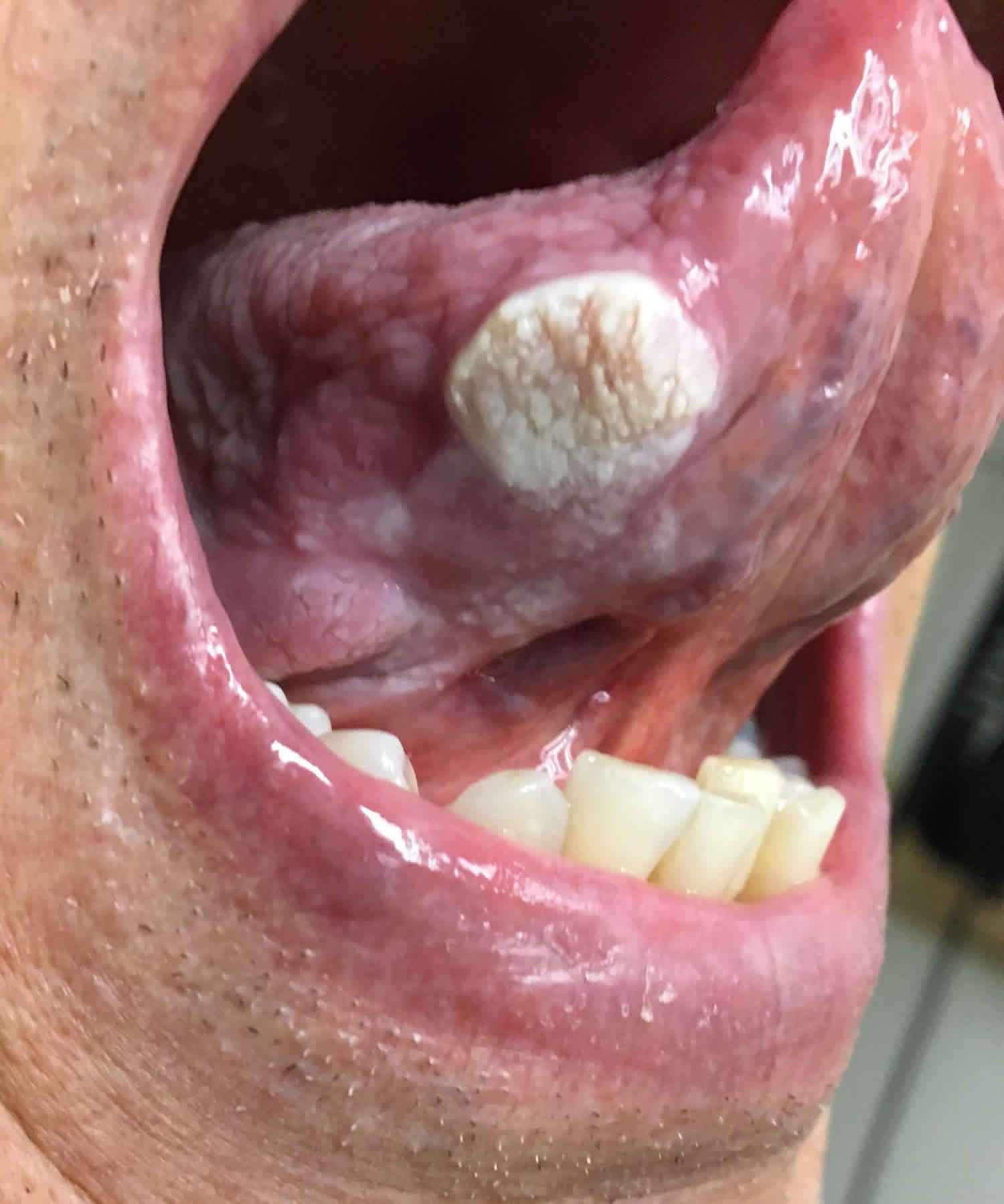 treatment for inverted papilloma sinus