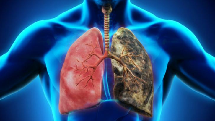detoxifierea ficatului moritz gastric cancer classification