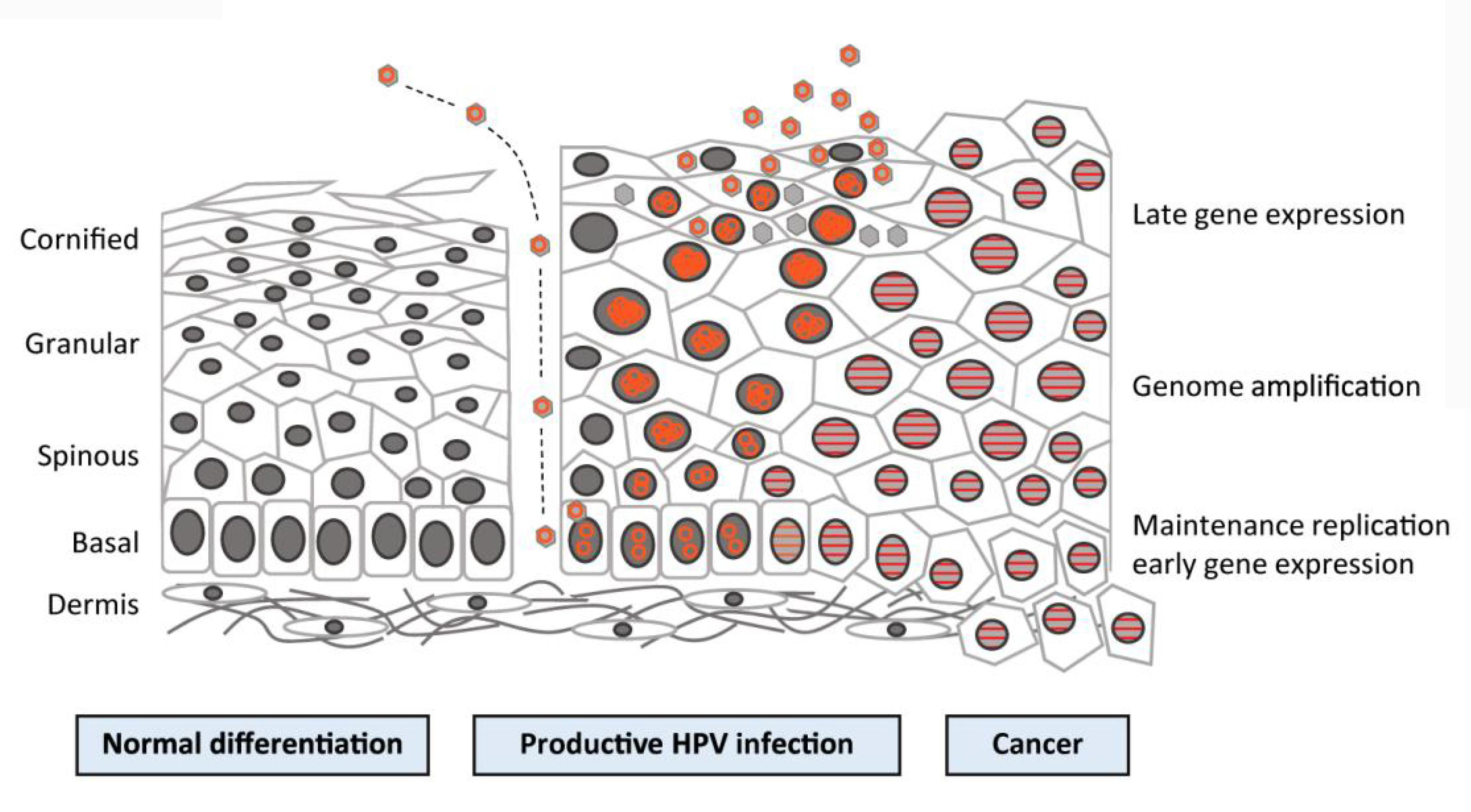 human papillomavirus (hpv) infection is directly associated with