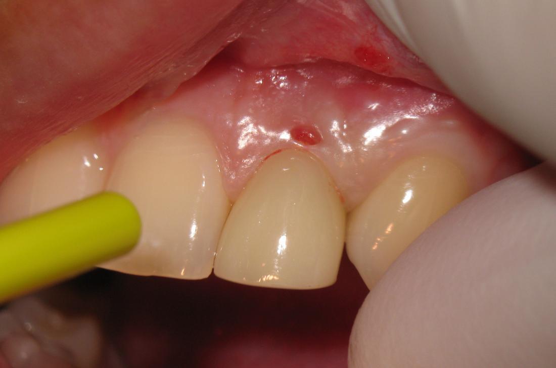 papilloma in gum