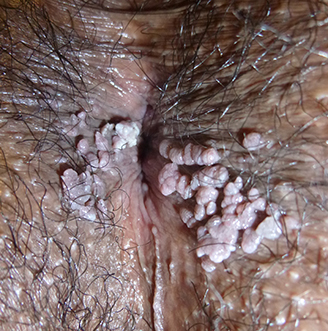 curar oxiuros naturalmente hpv 16 and 18 penile cancer