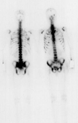 cancer pulmonar metastaze osoase
