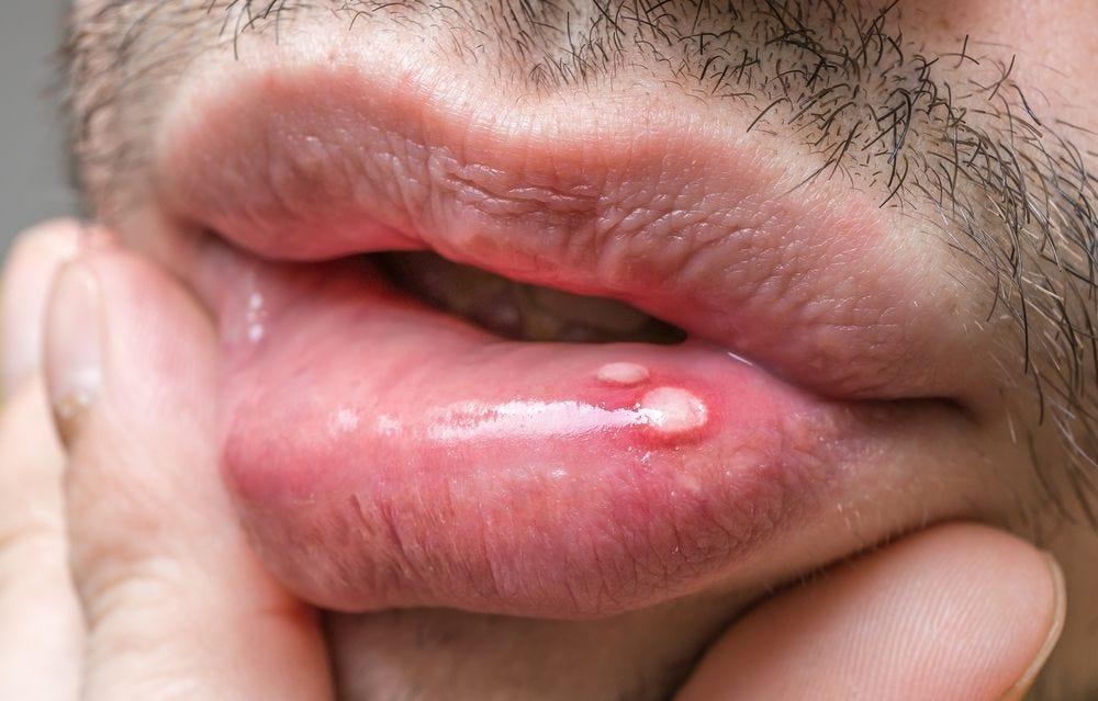 mouth warts painful