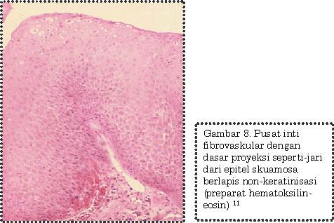 papilloma virus 9 ceppi