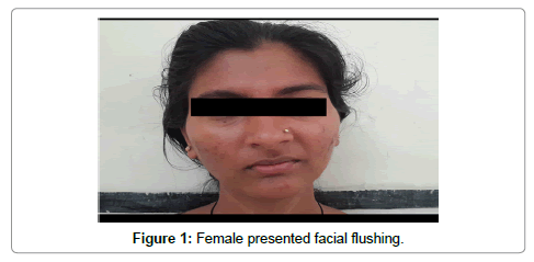 neuroendocrine cancer facial flushing intraductal papilloma with usual ductal hyperplasia