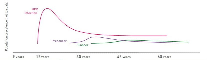 can hpv cause cancer 30 years later