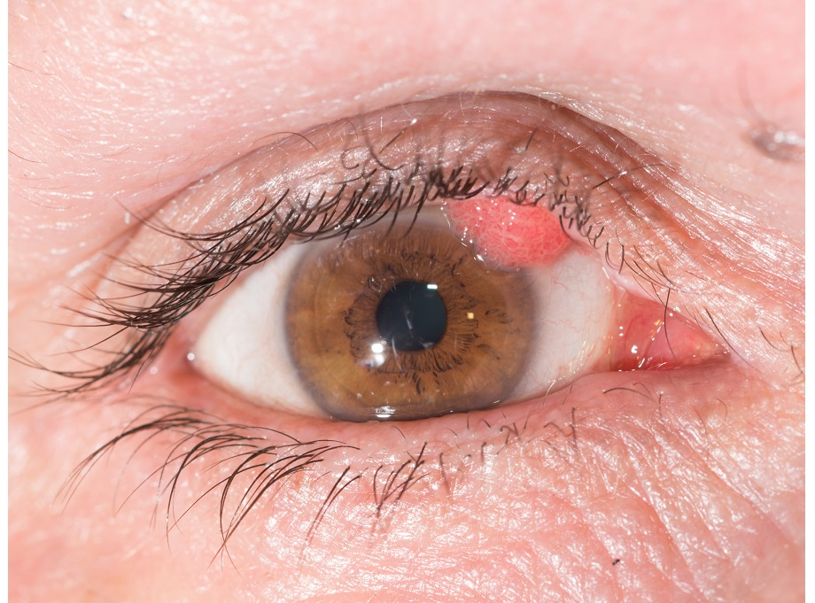 can wart on eyelid be removed
