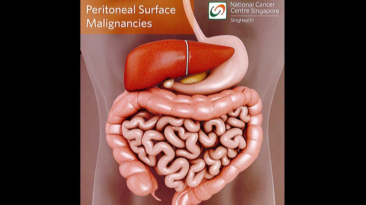 cancer abdominal metastases