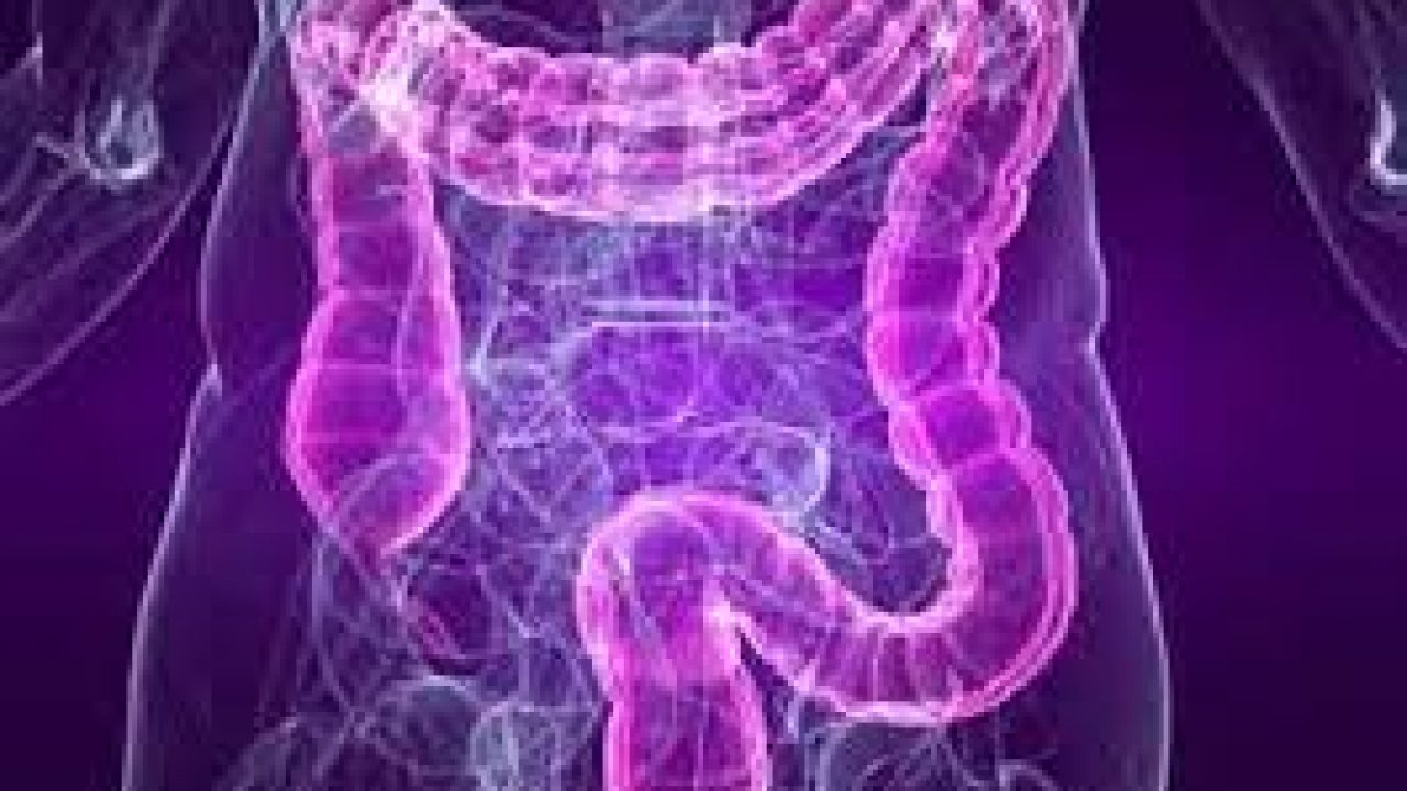 cancer al intestinului gros