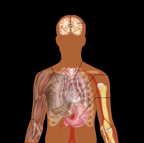 Sindroamele paraneoplazice ale sistemului nervos - constiintaortodoxa.ro