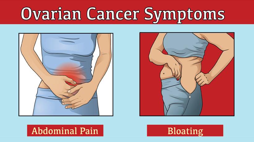 cancer causing abdominal swelling imagenes virus del papiloma humano verrugas genitales