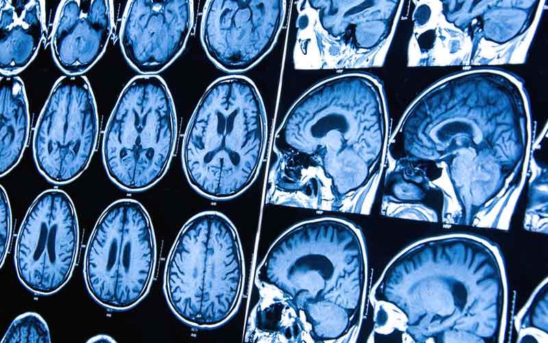 cancer cerebral que es dermatite zone intime