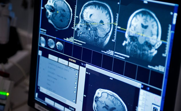 cancer cerebral se puede curar hpv virus test mannen