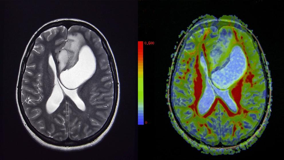 cancer cerebral se puede curar cancer de colon y emociones