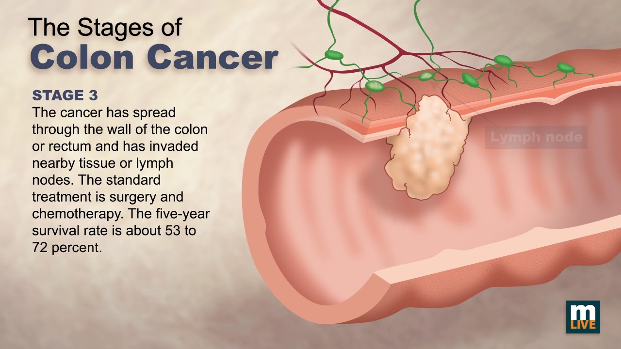 cancer colorectal be hpv impfung studien