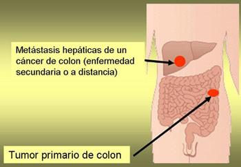 cancer de colon galopante