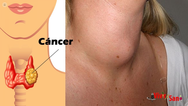papillary thyroid cancer nhs