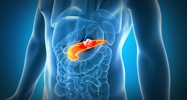 cancer de pancreas sintomas