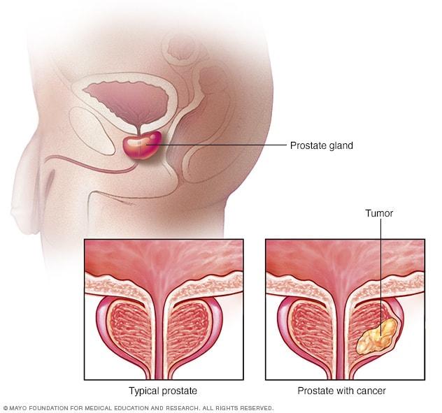 simptome parazitii intestinali adulti virus papiloma en manos