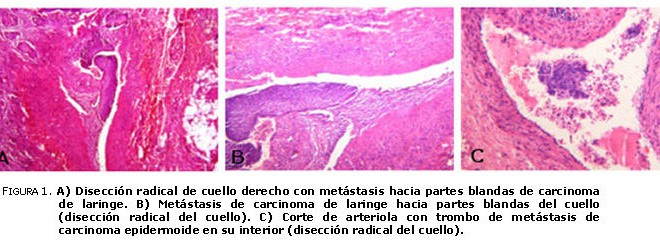 cancer epidermoide laringe