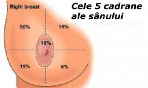 cancer la san localizare