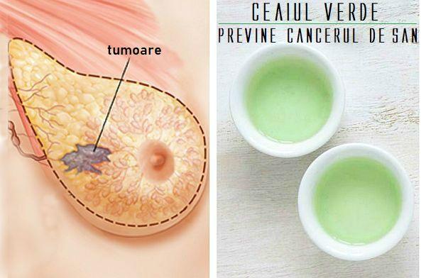 cancer la san tipuri
