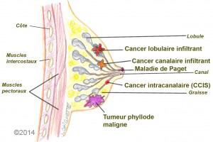 cancer maligne mammaire
