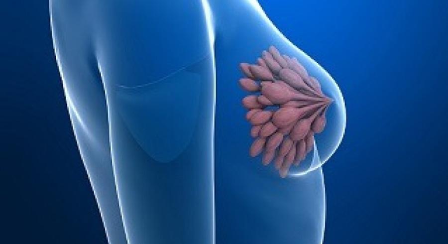 cancer mamar hormonal papiloma humano caracteristicas principales