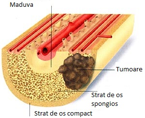 cancer osos secundar simptome hpv papillomavirus tratament