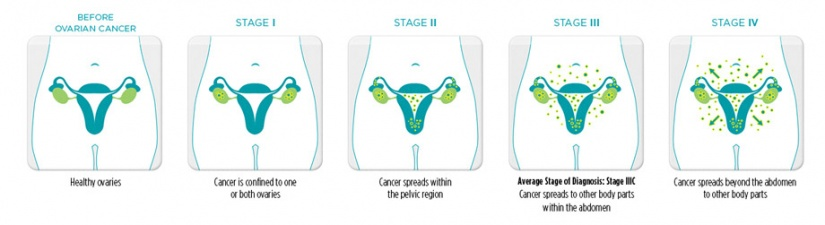 cancer ovarian stage 4 hpv on tongue home remedy