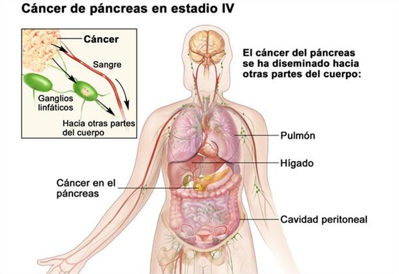 human papillomavirus test for males cancer neuroendocrine du pancreas