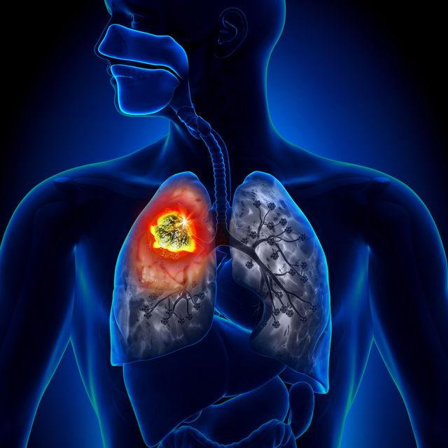cancer pulmonar avansat jus fruit detoxifiant