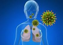 cancer pulmonar metastaza durata de viata hpv virus erfahrungen
