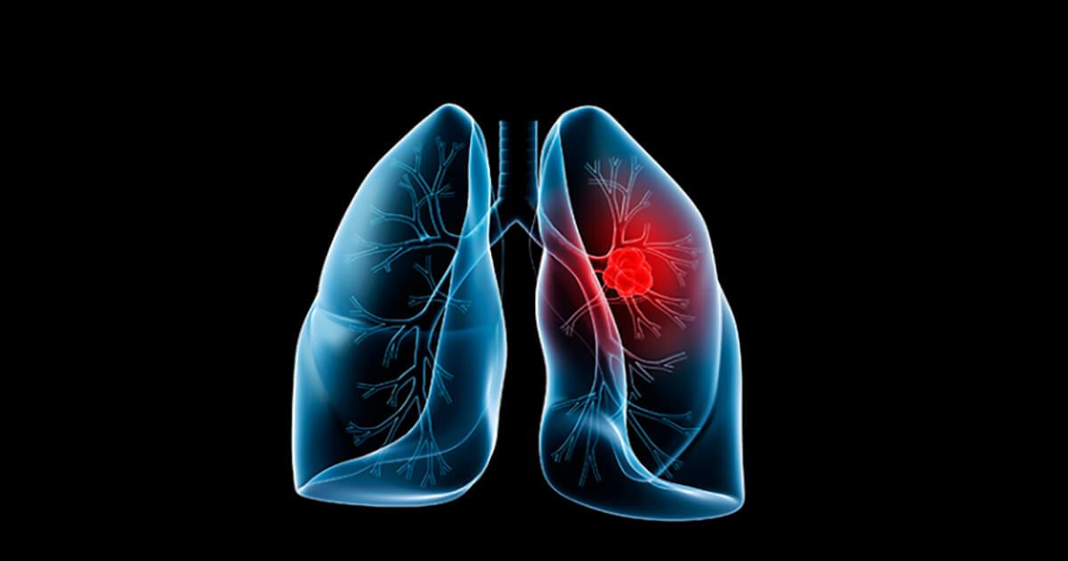 cancer pulmonar scuamos tratament papilloma virus quali sono i sintomi
