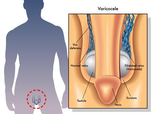 cancer testicule qui consulter cancer pancreas survival rate