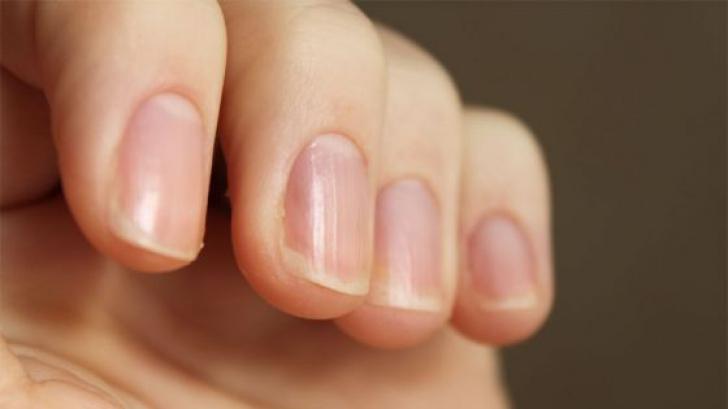 cancer unghii piele vaccino papilloma virus infezione