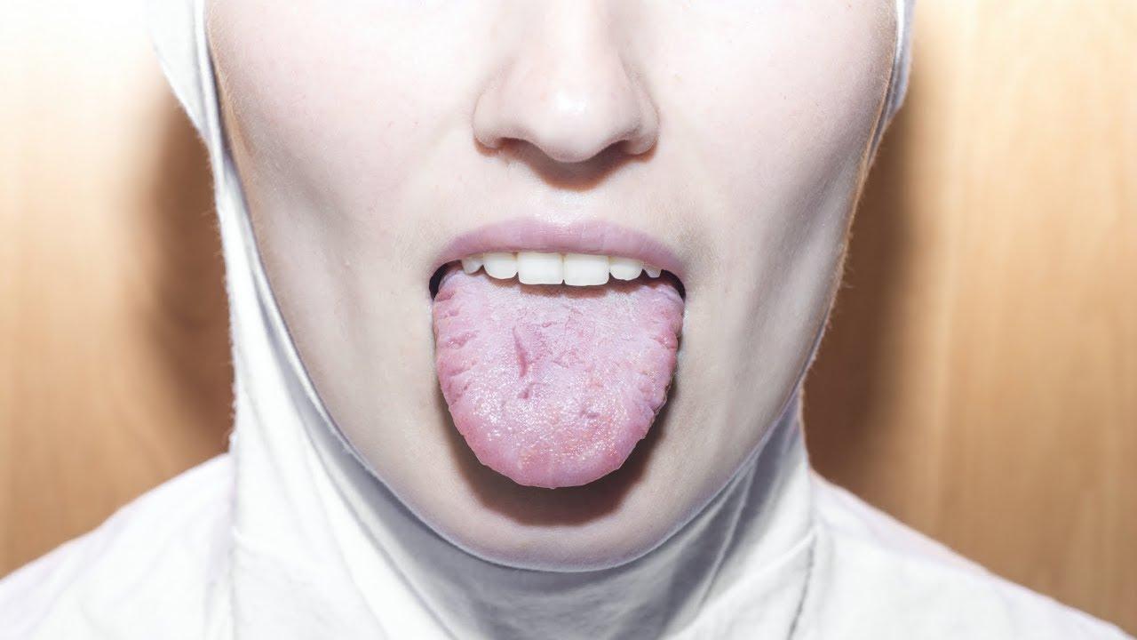 papilloma means retete supe detoxifiere