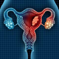 cancerul de endometru simptome