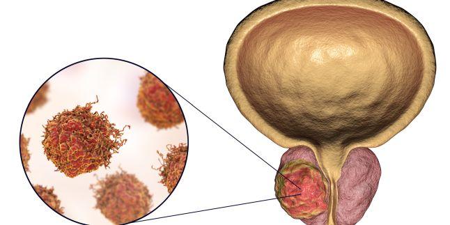 cancerul de prostata se trateaza cancer pancreatic symptoms
