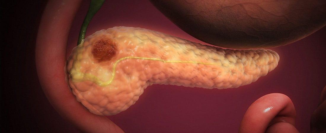 cancerul pancreasului simptome