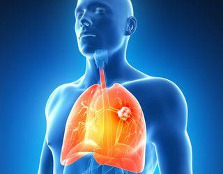 cancerul pulmonar simptome helmintox nuo kirminu