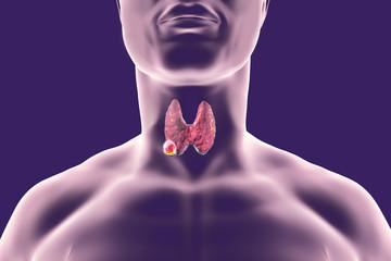 cancer mamar hormonal