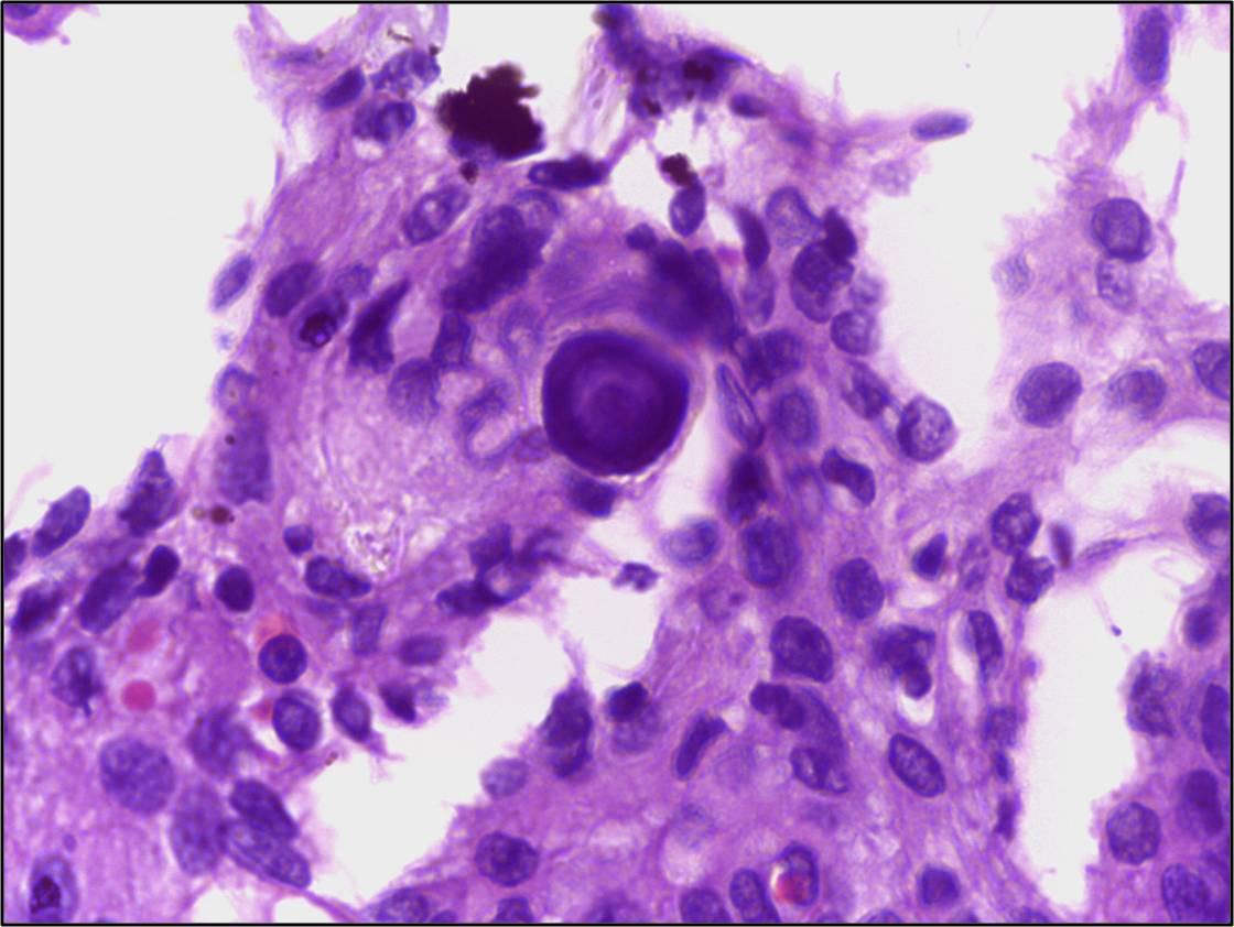carcinoma papilar tiroides farmaco contra oxiuros