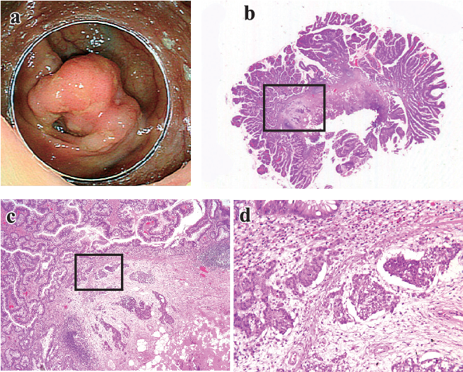neuroendocrine cancer of the colon