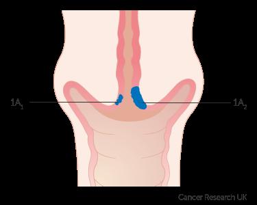 cervical cancer treatment stage 1 viermi intestinali 1 cm